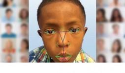 Технологии распознавания лица можно использовать для диагностики заболеваний