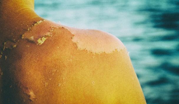 Лето по-научному: Как ходить под солнцем и не сгорать