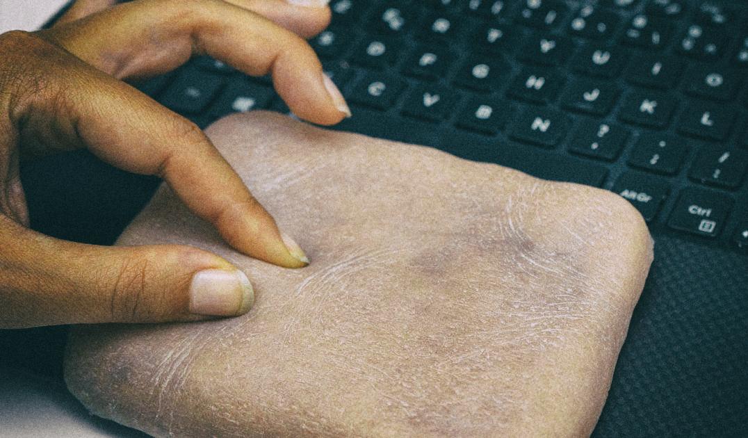 Ученые вшили телефон в искусственную человеческую кожу