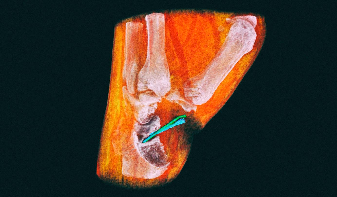 Разработана технология цветного трехмерного рентгена