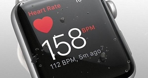 Xiaomi обошла Apple по поставкам носимых устройств