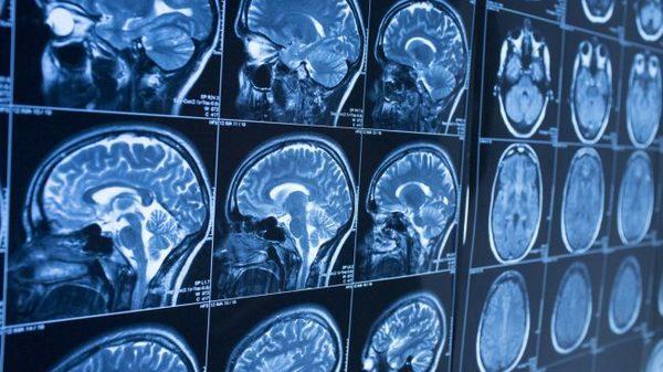 ИИ способен выявить болезнь Альцгеймера за годы до появления симптомов