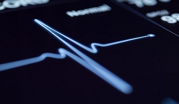 Искусственный интеллект превзошел кардиологов по точности предсказания сердечных приступов
